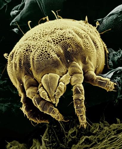 Matracetropico.sk - alergia na roztoče